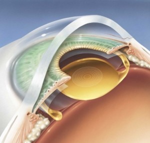 Implant intra-oculaire