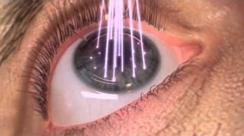 tir laser (1)